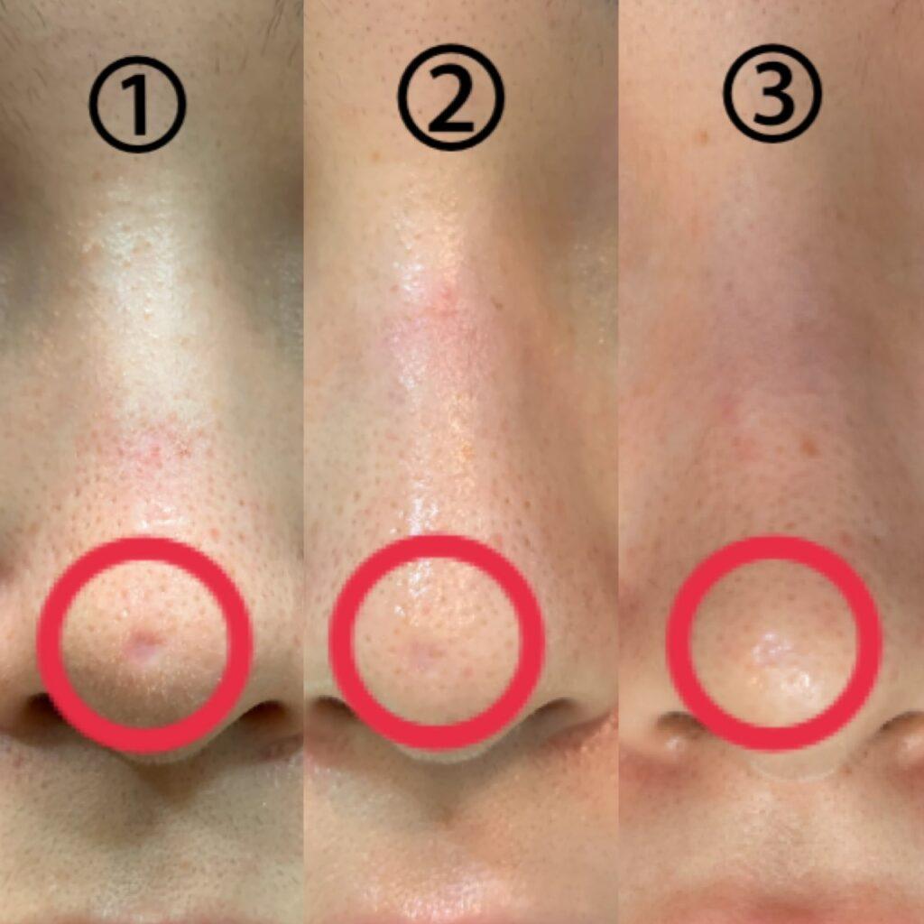 鼻の凹み傷跡