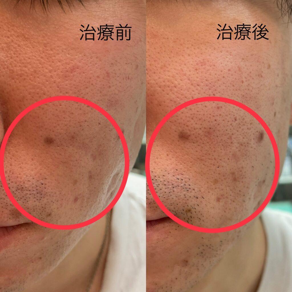 ニキビ跡,傷跡,凹み,幹細胞治療