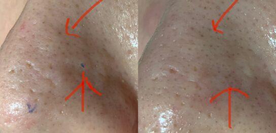 鼻のニキビ跡傷跡