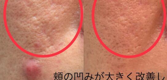 ニキビ跡による凹みに対する幹細胞治療