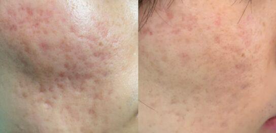 ニキビ跡による頬の凹みに対する幹細胞治療