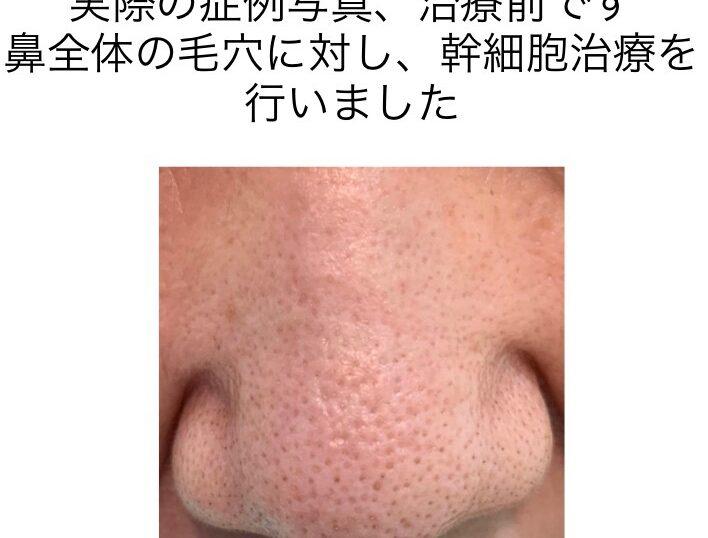 鼻全体の毛穴に対する幹細胞治療