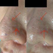 鼻の傷跡治療