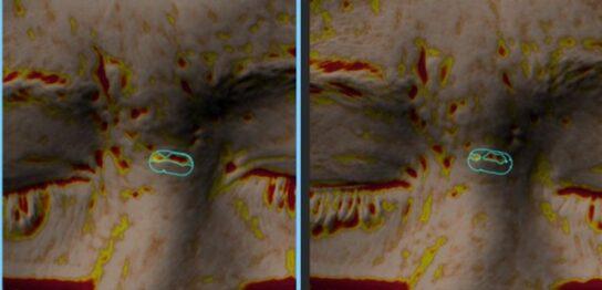 ニキビ跡による眉間の凹み