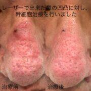 鼻の凹凸に対する幹細胞治療