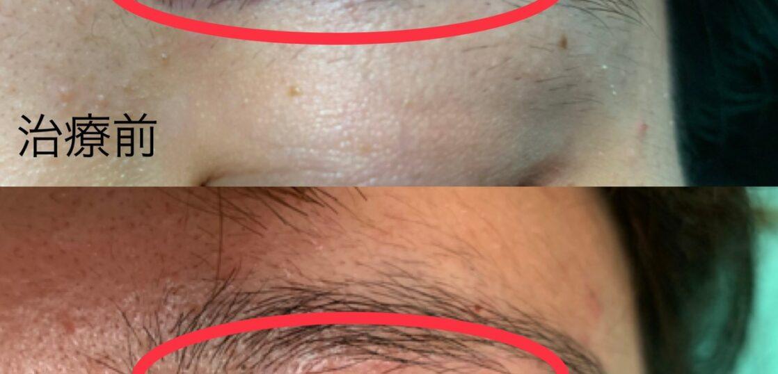 眉下切開の傷跡に対する幹細胞治療