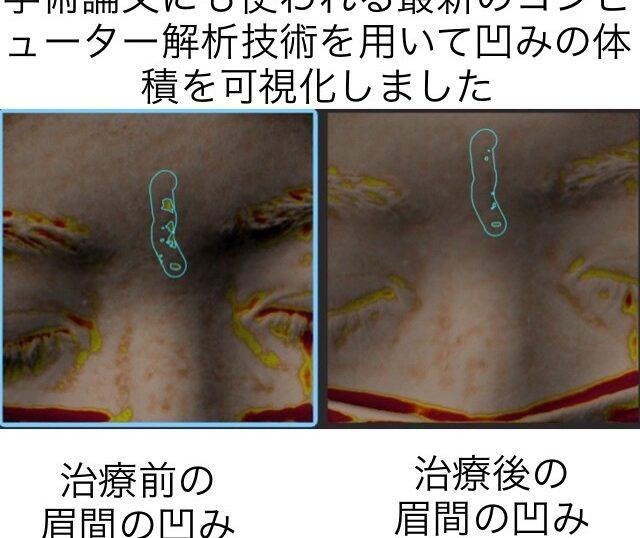 ニキビ跡による眉間の凹凸に対する幹細胞治療