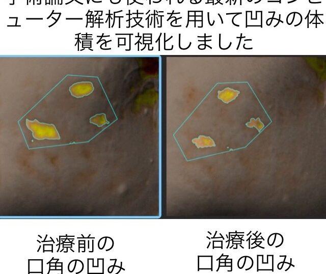 ニキビ跡による頬の凹凸に対する幹細胞治療