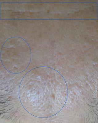 ニキビ跡、クレーター、凹み症例写真ビフォー10