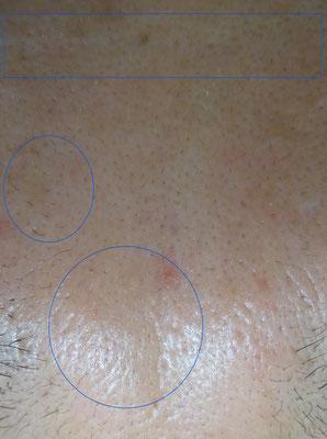 ニキビ跡、クレーター、凹み症例写真アフター10