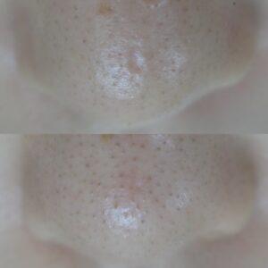 鼻の水疱瘡跡