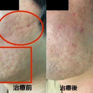 ニキビ跡の幹細胞治療