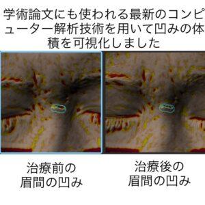 眉間のニキビ跡の幹細胞治療