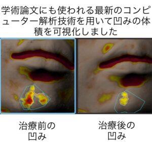 下顎の傷跡に対する幹細胞治療