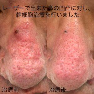 レーザーで出来た鼻の凹凸に対する幹細胞治療