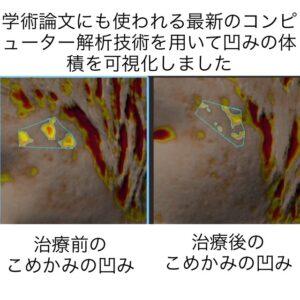 こめかみに出来たニキビ跡の凹みに対する幹細胞治療