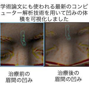 眉間に出来たニキビ跡の凹みに対する幹細胞治療