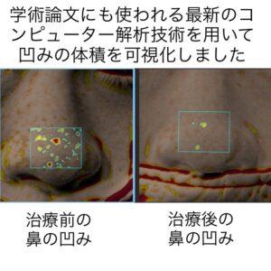 鼻に出来たニキビ跡の凹みに対する幹細胞治療