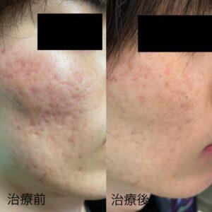 頬に出来たニキビ跡の凹みに対する幹細胞治療