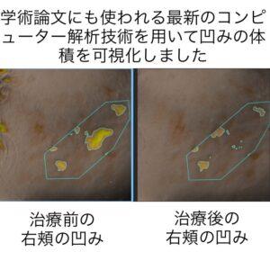 頬の凹みに対する幹細胞治療