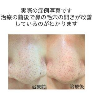 鼻の凹みに対する幹細胞治療