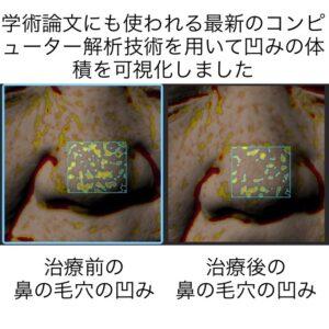鼻の毛穴に対する幹細胞治療